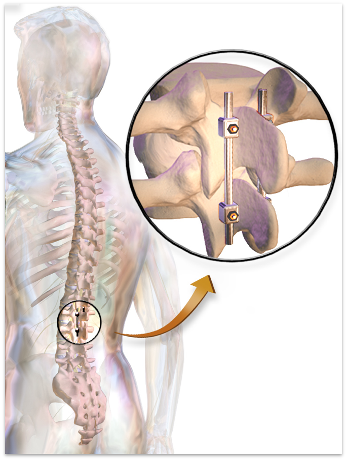 How To Fix A Spinal Cord Injury Medicine